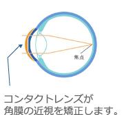 コンタクトレンズが角膜の近視を矯正します。
